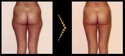 Patientin vor und nach der Fettabsaugung mit Mikrokanülen