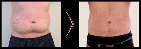 Patient vor und nach der Behandlung mit der Fettwegspritze