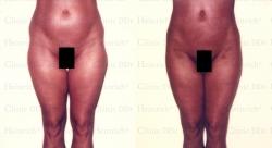 Fettabsaugung mit Mikrokanülen an Bauch, Hüften und Außenschenkeln