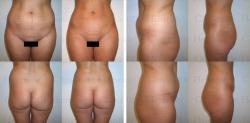 Fettabsaugung mit Mikrokanülen an Unterbauch und Hüften