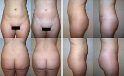 Fettabsaugung mit Mikrokanülen an Taille, Oberbauch, Unterbauch und Hüften