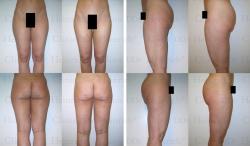 Fettabsaugung mit Mikrokanülen an Gesäß, Außenschenkeln und Innenschenkeln