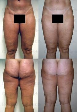Fettabsaugung mit Mikrokanülen an Gesäß, Außenschenkeln, Innenschenkeln und Knien