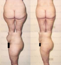 Fettabsaugung mit Mikrokanülen an Bauch, Gesäß und Außenschenkeln