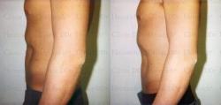 Fettwegspritze an Taille und Unterbauch