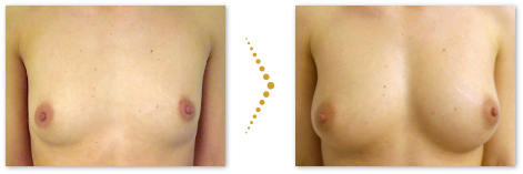 Patientin before and after stem cell breast augmentation