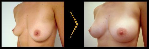 Patientin vor und nach der Brustvergrößerung mit Stammzellen