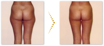 Patient before and after microcannular liposuction