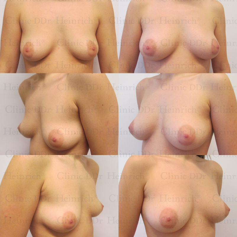 Breast implant dating site