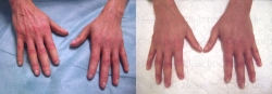 Stem cell skin rejuvenation on the hands