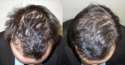 Hair growth therapy with growth factors