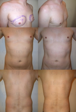 Microcannular liposuction on breast, belly, and hips