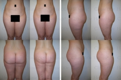 Microcannular liposuction on upper belly, lower belly, and hips