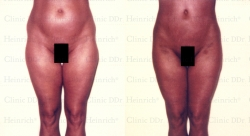 Microcannular liposuction on belly, hips, and outer thighs