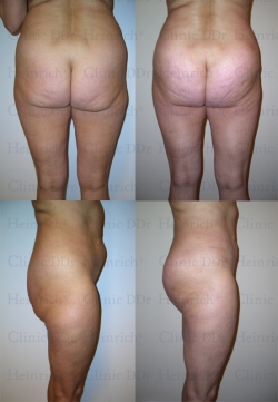 Microcannular liposuction on upper belly, lower belly, hips, outer thighs, inner thighs, buttocks, and dent correction