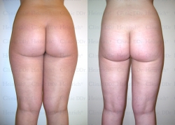 Microcannular liposuction on buttocks, outer thighs, and inner thighs