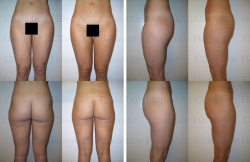 Microcannular liposuction on waist, hips, buttocks, outer thighs, and inner thighs