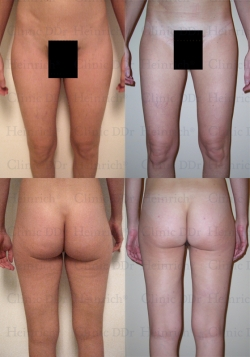 Microcannular liposuction on hips, buttocks, outer thighs, and inner thighs