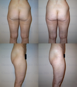 Microcannular liposuction on outer thighs and inner thighs (slightly)