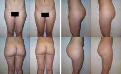 Microcannular liposuction on buttocks and outer thighs
