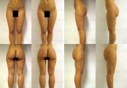 Microcannular liposuction on hips, buttocks, outer thighs, inner thighs, and lower legs