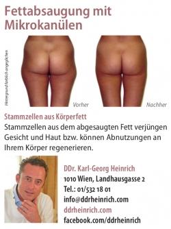 Woman: Fettabsaugung mit Mikrokanülen