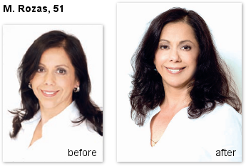 Before and after photograph of Mariannela Rozas