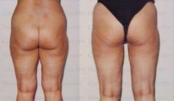Липосакция с применением микроканюлей, проведённая на внешней стороне бедра, внутренней стороне бедра и коленях