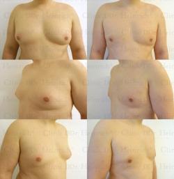 Липосакция с применением микроканюлей, проведённая на груди