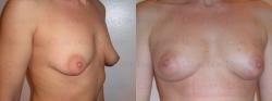 Увеличение груди с использованием стволовых клеток